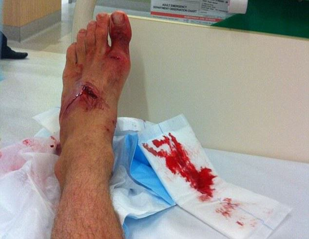 foot1 Lucky Lad Survives Shark Attack After Mistaking Shark For Rock