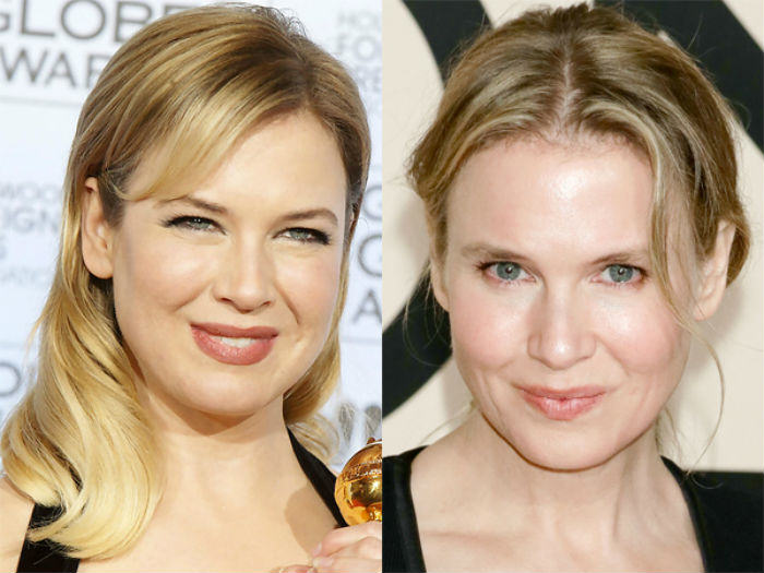 Renee Zellweger Plastic Surgery Before After Photos A UNILAD Look Back At 2014