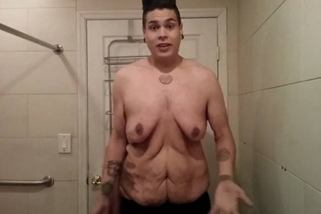 MATT 640x426 Man Loses 270lbs, Makes Video Showing Off Excess Skin Left Over
