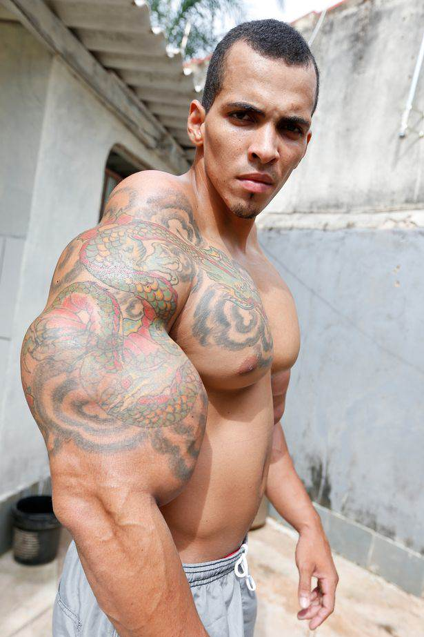 romario1 Bodybuilder Gets So Addicted To Muscle Injections He Risked Arm Amputation