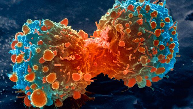 cancer670 New Cancer Drug Combination Shrinks Tumors In 60% of Patients