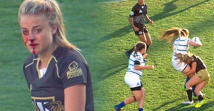 gp fb Female Rugby Player Breaks Nose, Carries On Playing Like Nothing Has Happened