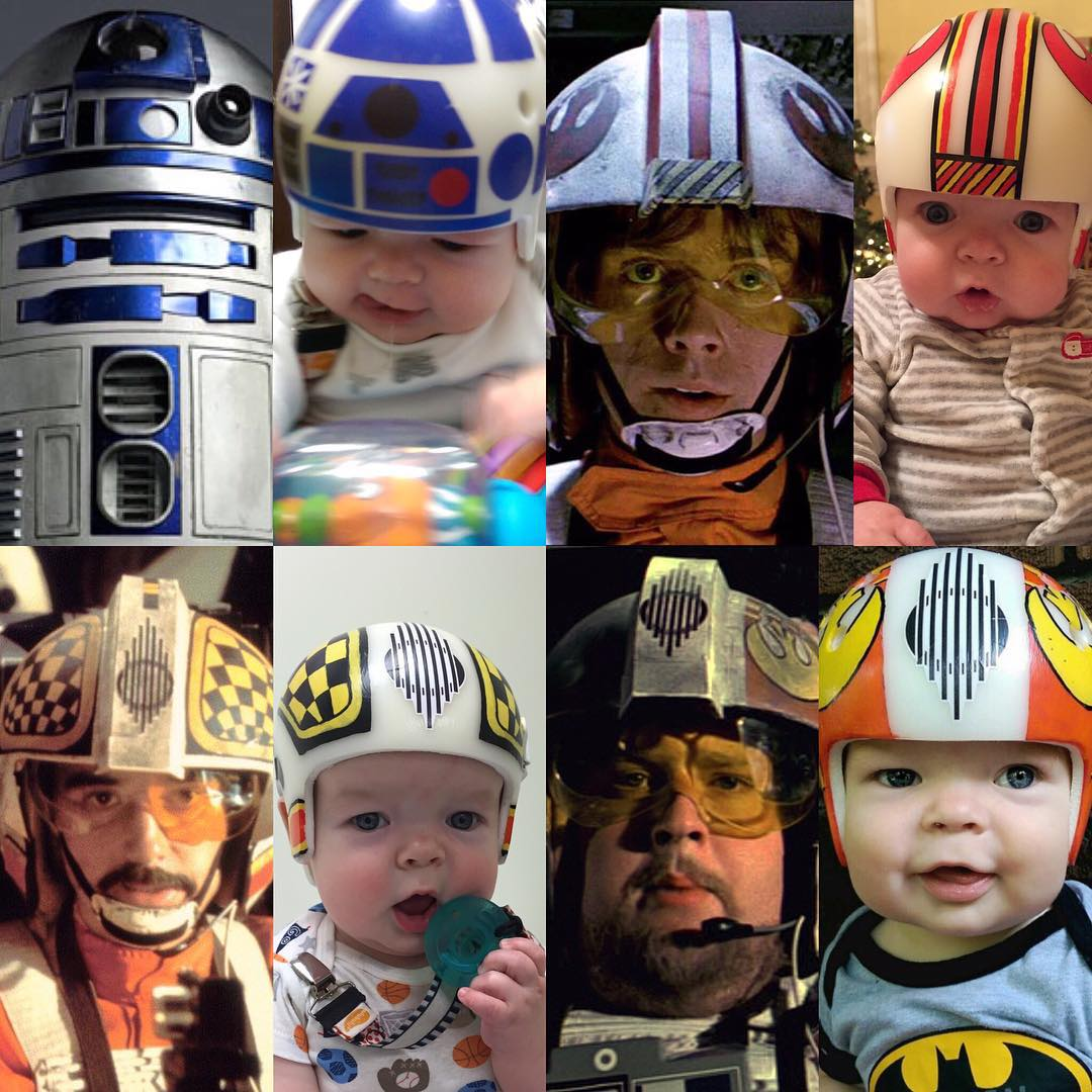 UNILAD fywW5Yb2 Dad Recreates Iconic Star Wars Helmets For Son After Cranial Surgery