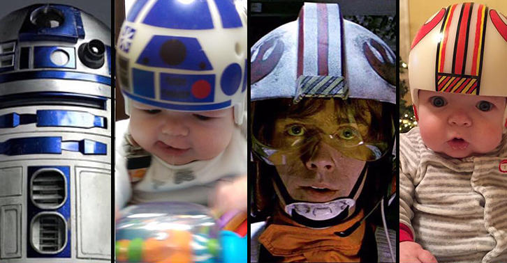 UNILAD head46 Dad Recreates Iconic Star Wars Helmets For Son After Cranial Surgery