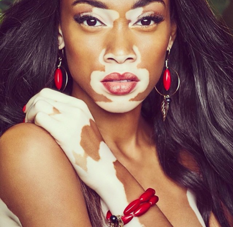 UNILAD wh3 White Women Have Been Mimicking Black Models Skin Condition Via Instagram