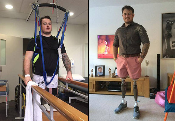 UNILAD jay baldwin WEB5 Double Amputee Soldier Told He Wouldnt Receive Further Treatment On The NHS