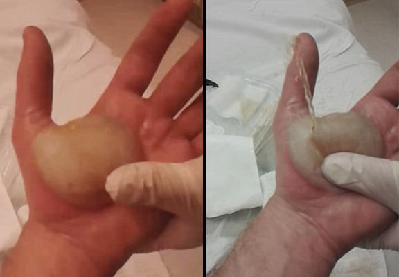 UNILAD blister pop WEB31684 Man Popping Massive Blister Which Covers His Entire Hand Is All Kinds Of NOPE
