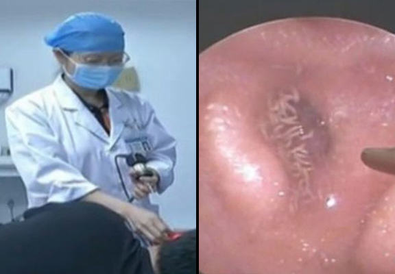 NOPE: Video Shows Man's Ear Infested With Dozens Of Fly Larvae