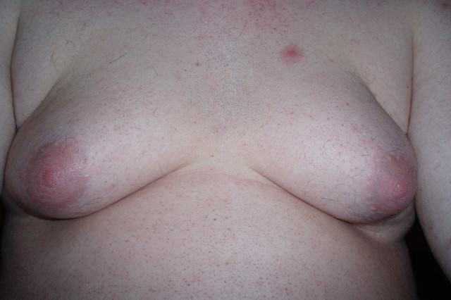 How To Tell If Someone's On Steroids 800px Gynecomastia 001 640x426