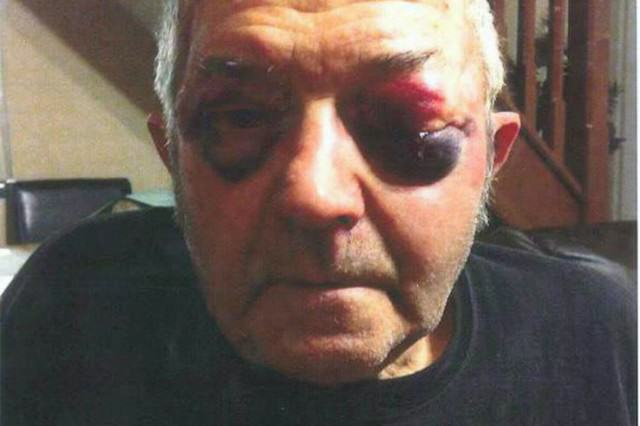 Kind Cabbie Gave Skint Men Free Ride Before They Battered And Robbed Him