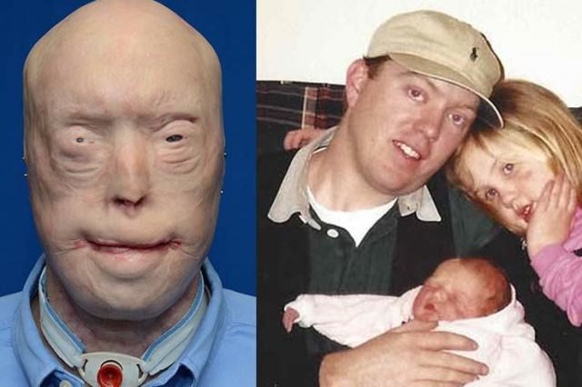 UNILAD a5261614 640x426 Disfigured Firefighter Undergoes Most Extensive Face Transplant Ever