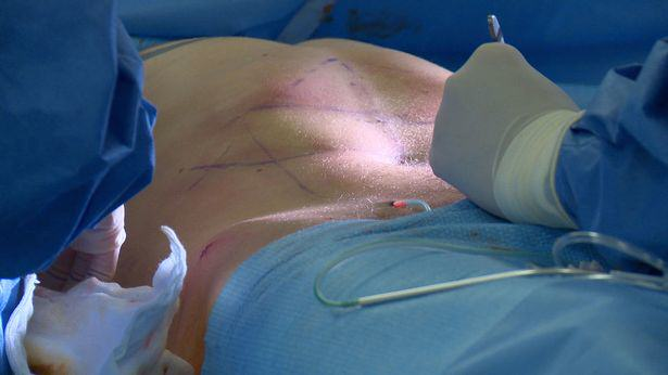 Lee Coupland 5 Lad Travels Across Europe To Have Permanent Six Pack Surgery