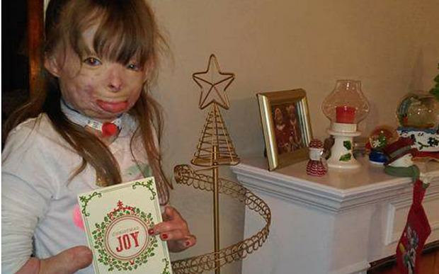 saf3 Girl Who Lost Family In Arson Attack Just Wants Cards For Christmas