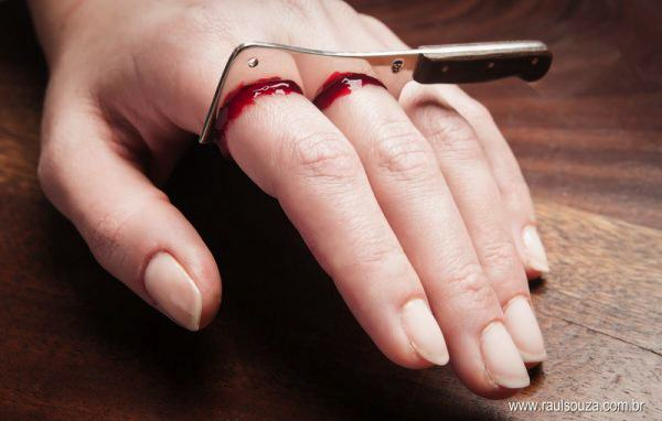 These Horrific Kitchen Accidents Will Put You Off Eating For The Day chefs4