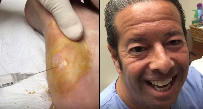 wart video FB Cluster Of Warts Removed From Mans Heel In Absolute NOPE Fest