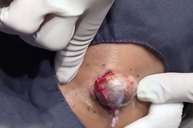 drpopper2 NOPE: Dr Pimple Popper Removes Massive Egg Sized Cyst In Best Video Yet