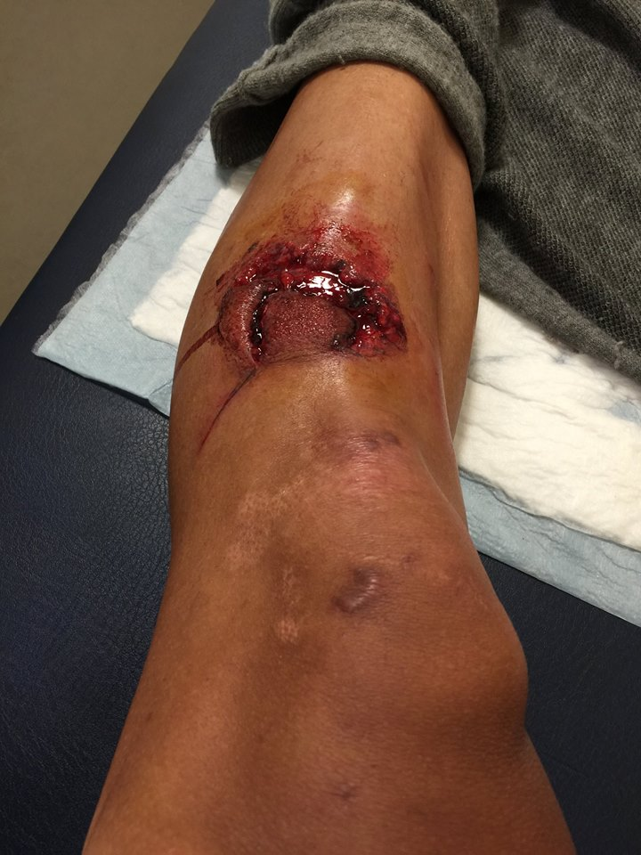NOPE: Cyclist Cuts Leg Through To Bone In Gruesome Accident shin5