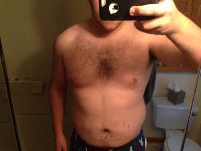 change7 Man Loses 100lbs In Less Than A Year, Heres How He Did It