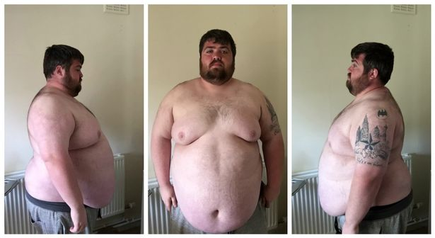 JS98006561 Man Too Fat For Theme Park Rides Loses An Incredible 17 Stone