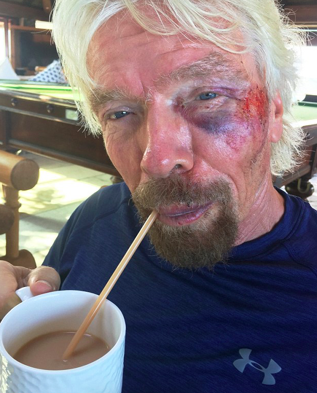 Screen Shot 2016 08 26 at 13.10.41 Photos Show Richard Branson After Horror Crash That Nearly Killed Him