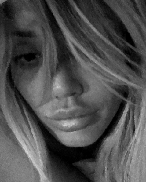Charlotte Crosby Slammed For Ruining Herself With Inflated Lips CharlotteCrosbyInsta
