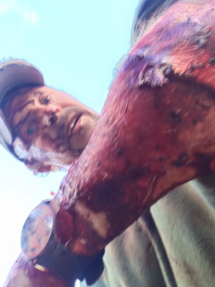 wsi imageoptim 14494616 10210413720048679 4413884651469566250 n Guy Posts Brutal Video After Getting Attacked Twice By Bear