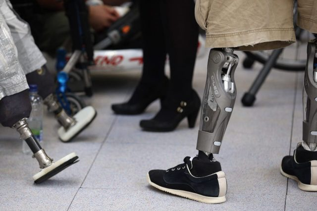 42361UNILAD imageoptim GettyImages 154338277 640x426 Transabled People Are Cutting Off Their Limbs To Become Disabled