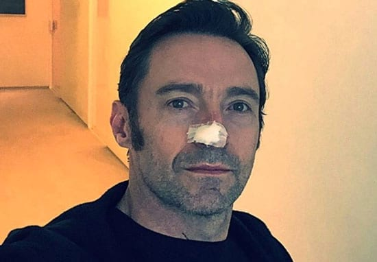 Hugh Jackman Confirms His Cancer Has Returned For The Sixth Time