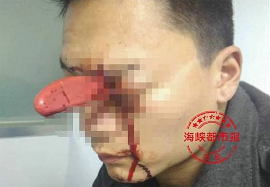 Man With Knife In His Eye Spotted Calmly Waiting To Be Seen At Hospital