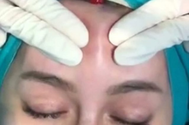 Woman's Forehead Is Drained After Fillers Get Infected