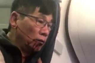 Police Report Says Dr David Dao Was To Blame For United Airlines Incident